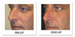 Study on Rhinoplasty Satisfaction Calls Out the Need for...