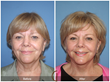 Blepharoplasty Facelift Lower Face and Neck Lift Neck Liposuction Eyelid Lift Facial Plastic Surgeon Cosmetic Surgery Newport Beach Orange County Anti-Aging Fine Lines Wrinkles