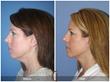 Facelift Neck Lift Neck Liposuction Facial Plastic Surgeon Cosmetic Surgery Newport Beach Orange County Anti-Aging Fine Lines Wrinkles