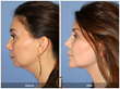 Chin Augmentation Fat Grafting Blepharoplasty Eyelid Lift Facial Plastic Surgeon Cosmetic Surgery Newport Beach Orange County Anti-Aging Fine Lines Wrinkles