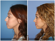 Rhinoplasty Nose Job Septoplasty Selfie Social Media Facial Plastic Surgery Cosmetic Surgeon Plastic Surgeon Newport Beach Orange County Girl
