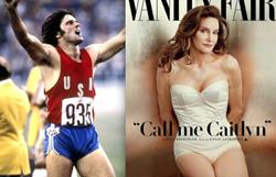 transgender, myshape lipo, fat transfer