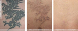 Tattoo Removal with Picosure vs. Q-Switched laser