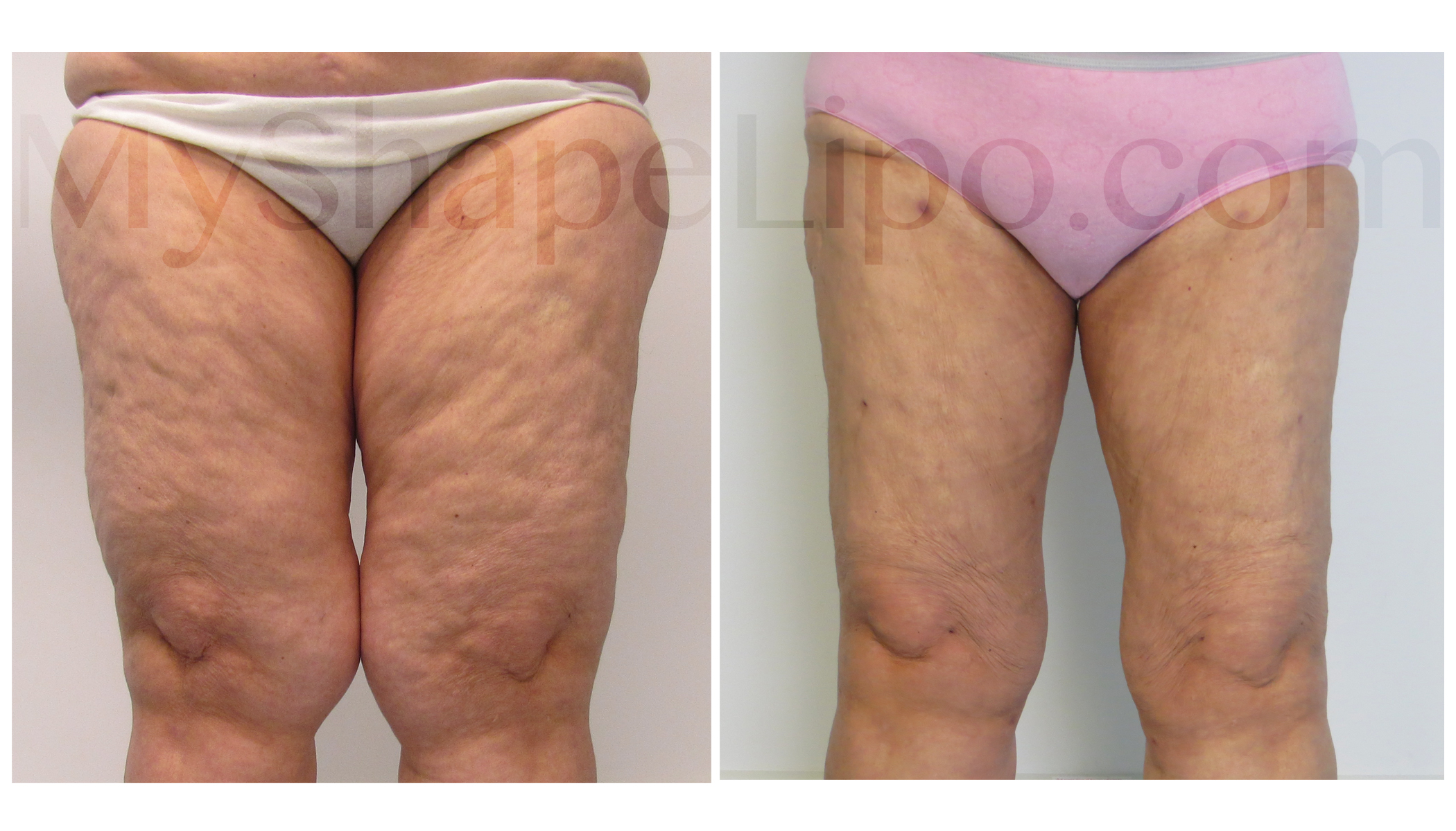 71 Year Old Liposuction Patient Proves It S Never Too Late To Look And Feel Good About Your Body