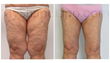 71 Year Old Liposuction Patient Proves It's Never Too Late To Look And...