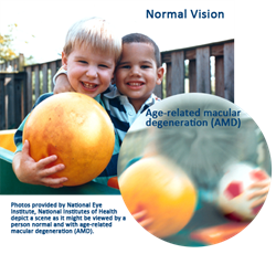 view with age related macular degeneration and without