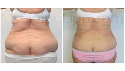 liposuction, smart lipo, senior liposuction, myshape lipo, trevor schmidt pa-c
