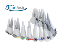 SmartArch orthodontic archwire