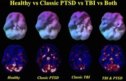 Brain Scans Can Tell Post-Traumatic Stress Disorder and Traumatic Brain Injury Apart According to New Research by Amen Clinics