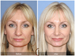 Dr. Kevin Sadati Announces Increasing Acceptance of Non-surgical Cosmetic Procedures