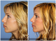 Revision Rhinoplasty Secondary Nose Job Deviated Nasal Septum Newport Beach Orange County SoCal Southern California Plastic Surgeon Cosmetic Surgeon