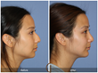 Rhinoplasty Nose Job Ethnic Rhinoplasty Chin Implant Chin Augmentation Plastic Surgery Facial Plastic Surgeon Cosmetic Surgery Orange County Newport Beach Los Angeles Beverly Hills California Top Surgeon