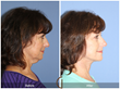 Facelift Neck Lift Neck Liposuction Laser Resurfacing Newport Beach Orange County Los Angeles Beverly Hills Cosmetic Surgeon
