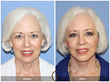 California Newport Beach Orange County Los Angeles Beverly Hills SoCal Facelift Neck Lift Blepharoplasty Eyelid Lift anti-aging