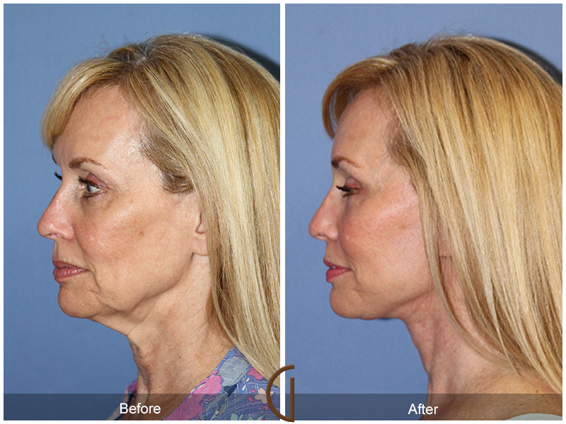 The Gallery Of Cosmetic Surgery Is Now Offering Special