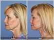 Lower Facelift Neck Lift Neck Liposuction Plastic Surgeon Cosmetic Surgery Facial Plastic Surgeon