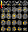 RSNA: Substance Abuse Reduces Brain Volume in Women but Not Men