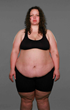 """""""Extreme Weight Loss"""": Tiffany (""""Pearls"""") Begins a Transformation Journey at the CU Anschutz Health and Wellness Center Determined to Leave Her Eating Disorders Behind"""