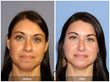 Newport Beach Facial Plastic Surgeon Discusses Non-Surgical Rhinoplasty with Realself