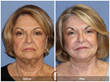 Facial Plastic Surgery Cosmetic Surgeon Fraction CO2 Laser Resurfacing Lower Facelift Neck Lift Newport Beach Orange County