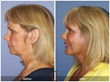 Lower Facelift Neck Lift Eyelid Lift Blepharoplasty Laser Botox Cosmetic Surgery Facial Plastic Surgery Newport Beach Orange County California