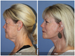 Facelift in Newport Beach California by Top Facial Plastic Surgery, Dr. Kevin Sadati Neck Lift Blepharoplasty Eyelid Lift
