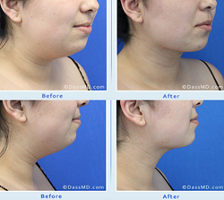 Dr. Dennis Dass patient before and after her neck rejuvenation
