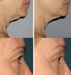 Dr. Patel shows examples of results with Ultherapy for eyelids and neck