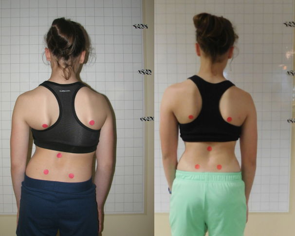 Innovative Scoliosis Brace Helps Adolescent Improve Spinal ...