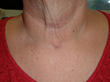 Total Thyroidectomy healed incision