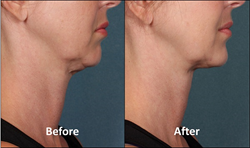 Kybella Injectable Double Chin Treatments Reduce Under Chin Fat