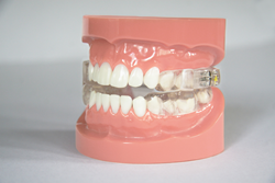 Mandibular Advancement Device (MADs) by Oravan