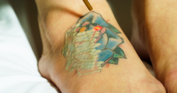 Trinity Laser Tattoo Removal Treatment at PHAZE in Las Vegas