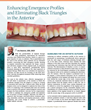 Enhancing Emergence Profiles and Eliminating Black Triangles in the Anterior
