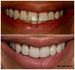 Chicago Tribune Article on Dental Implants Highlights the Technological Side of Modern Dentistry, Says Dr. Sam Saleh