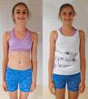 Scoliosis Brace to improve curvature, scoliosis bracing to improve lumbar scoliosis improve