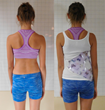 Scoliosis Brace for lumbar scoliosis