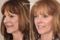 Overbite Correction without Surgery or Braces.