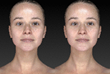 Rhinoplasty Before and After Animation