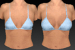 Breast Augmentation Before and After San Diego Plastic Surgery