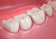 Smile Solutions Now Offers LANAP®, a Laser Periodontal Therapy™