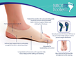 BunionETTE Bootie Sales Soar After Being Added to the Bunion Bootie Website