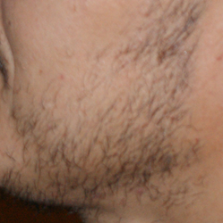 Patient seeks robotic hair transplant to get a fuller beard without the linear scar
