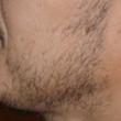 Robotic Hair Transplant Revolutionizes Beard Transplants at We Grow Hair