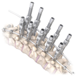 OrthoPediatrics Sees Great Success Following the Launch of the RESPONSE™ Spine System