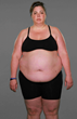 """Extreme Weight Loss"": When Jackie Sheds Her Guilt, She's Ready to Begin Shedding Her Excess Weight at the University of Colorado Anschutz Health and Wellness Center"