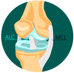 ACL INJURY Treatment in NYC
