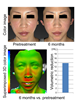 46 year old Japanese female study participant.  Images show from left to right pictures of the participant before treatment to 6 months post treatment. The color image shows a superimposed 3D image of