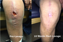 Post surgical wound before and after application of AlphaPATCH dehydrated amniotic membrane