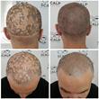 scalp micropigmentation alopecia